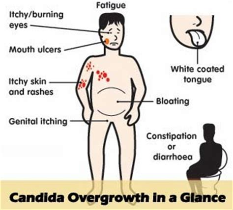 fenugreek can it rid body of systemic candida picture 6