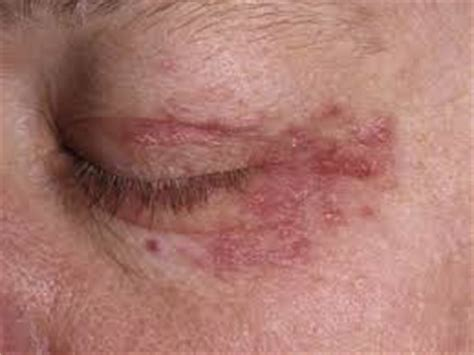 about skin rashes on the neck area picture 5