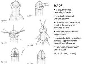 hypospadias bladder picture 14