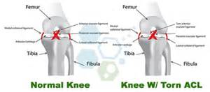 surgery minuscus tear knee joint picture 14