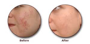 skin damage and treatment picture 11