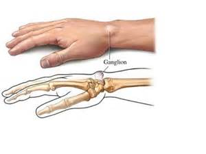 ganglion cyst casyor oil picture 5