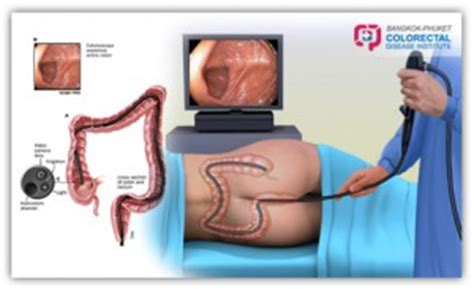 Colon cancer pictures picture 2