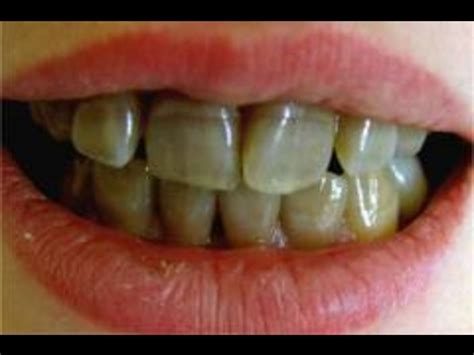 antibiotic side effects discoloring teeth picture 6