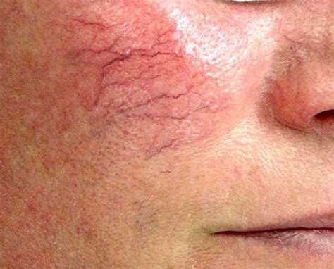 small red spider veins under skin of monis picture 5