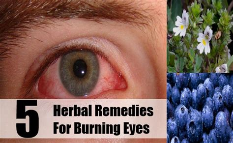 herbal remedies for eyes picture 1