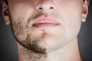 men's hair removal picture 6