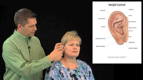 acupressure weight loss picture 3