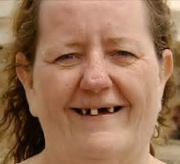 picture of fat women with no teeth picture 4
