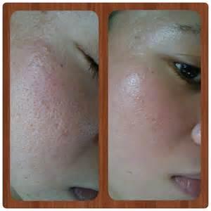 glutathione acne picture 3