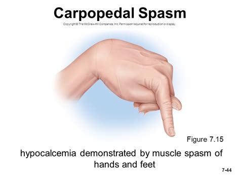 causes for muscle cramps in hands picture 7
