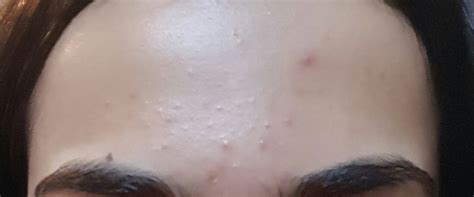 acne and candida picture 10
