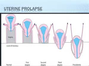 female bladder bulge picture 3