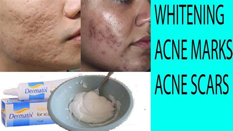 wd 40 and acne scars picture 2
