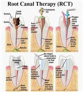 teeth rootcanel picture 6