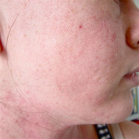 goldreallas side effects sensitive skin picture 13
