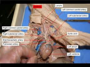 gall bladder and celiac picture 7