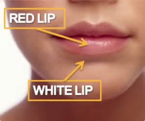 creams for lip cancer picture 17