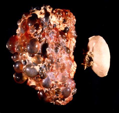 chronic colon problems picture 9