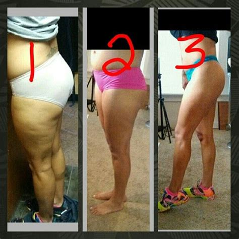 can weight training remove cellulite from legs picture 4