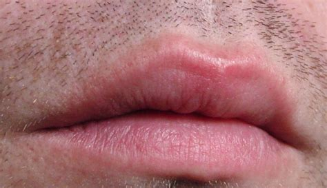 what causes for lips to rash and swell picture 12