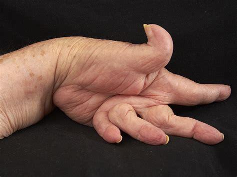 arthritis picture 11