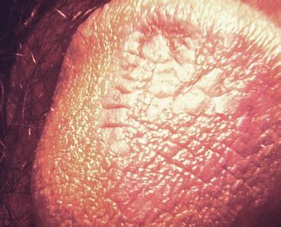 photos penis genital herpes men picture 2