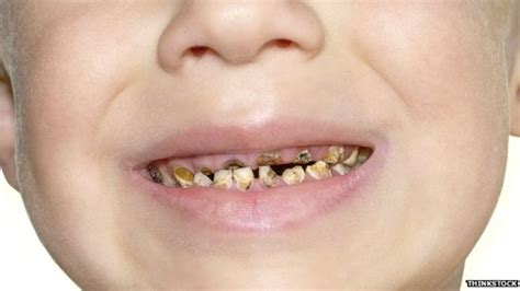 babies rotten teeth picture 3