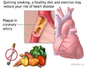 diet for diabetic and cad picture 5