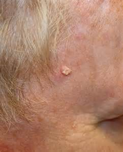 precancerous skin leisons picture 3