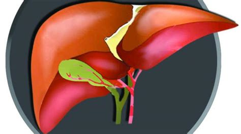 cirrhosis of liver picture 11