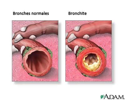 second hand smoke graves disease picture 13