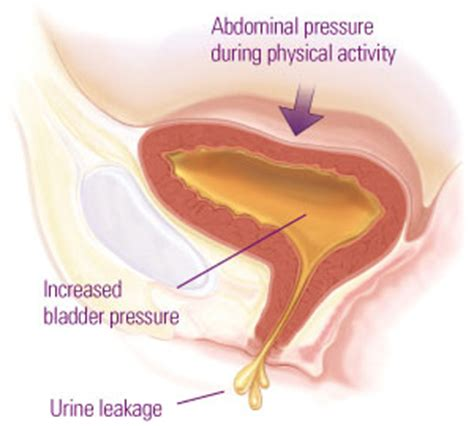 after bladder sling surgery when can you exercise picture 9