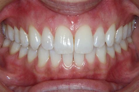 healthy teeth pictures picture 18