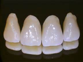 dentist porcelain teeth picture 19