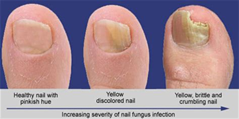 toe nail laser treatment in new mexico picture 14