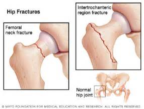 high blood pressure and hip fracture picture 1