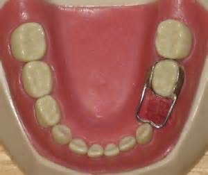 teeth spacers picture 5