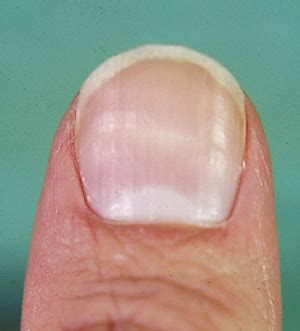 thyroid problems and fingernail problems picture 5