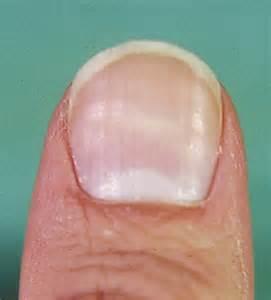 thyroid fingernail picture 3