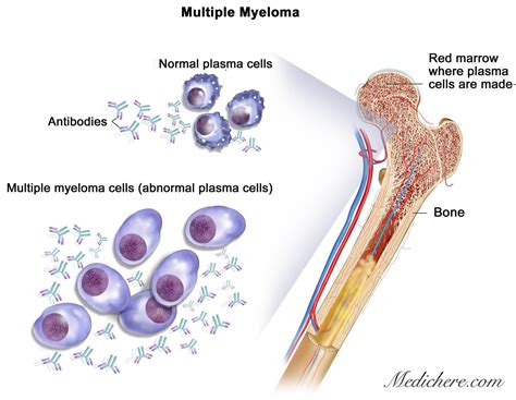 bladder myeloma picture 13