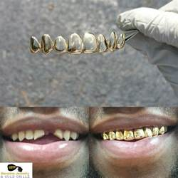 wholesale custom gold teeth grills picture 19