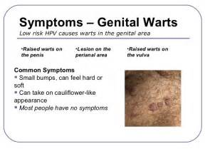 genital wart symptoms picture 2