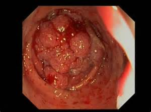 pictures of malignant colon polyps picture 5