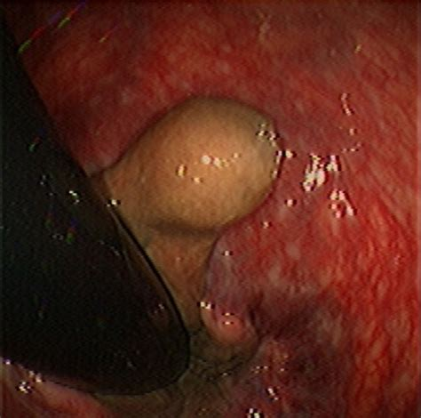 hemorrhoid voycious picture 15