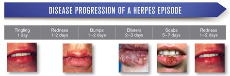 developing cure for herpes picture 2