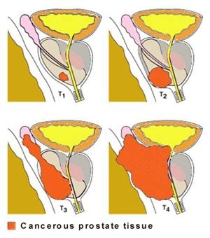 cures for terminal bladder cancer picture 15