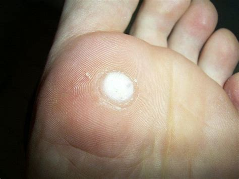 wart medications picture 9