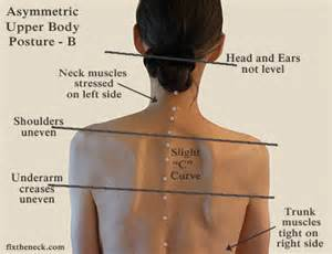 muscle tightening in right side of back picture 2