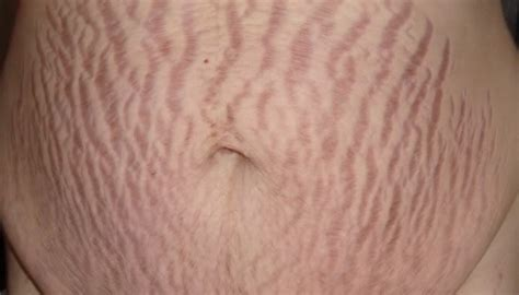 will stretch marks appear on mi lower abdomen after abortion picture 3